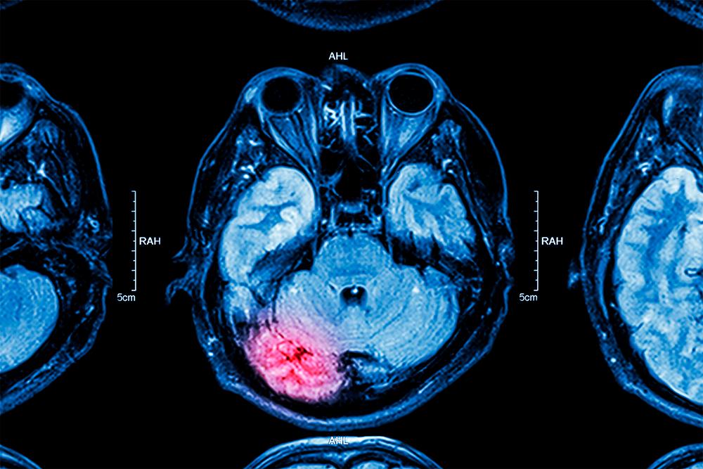 A MRI scan.